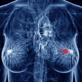 A New Light on Breast Cancer.